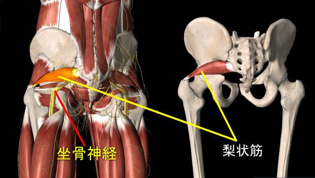 梨状筋と坐骨神経の位置関係